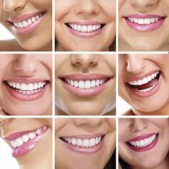 Porcelain Dental Crowns and Bridges