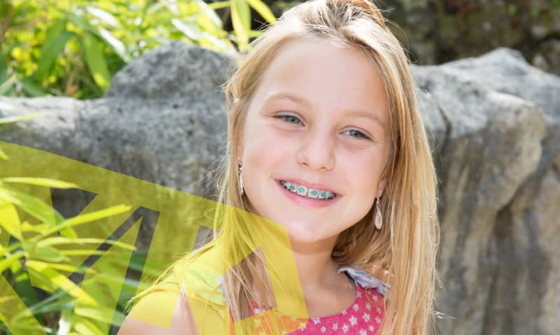 Benefits of early orthodontic evaluations