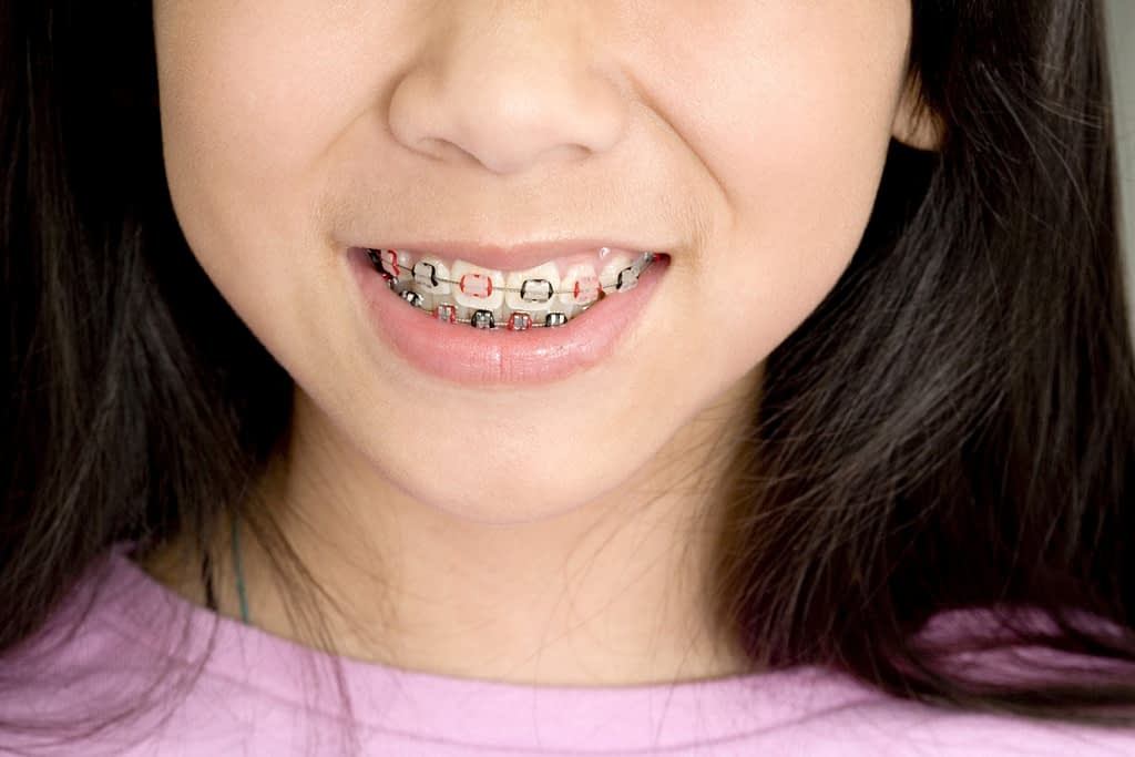 Vancouver pediatric dentist